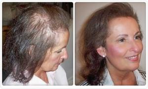 thicker-hair